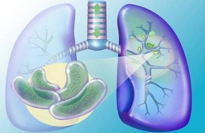 Longvorm Van Tuberculose Stadia Van Tuberculose